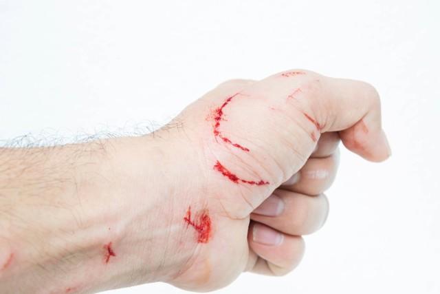 Укусил кот, опухла рука - что делать и чем лечить?