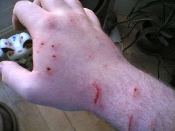 Укусила кошка - что делать, первая помощь после укуса