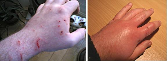 Чем лечить укус кошки - первая помощь, когда обращаться к врачу